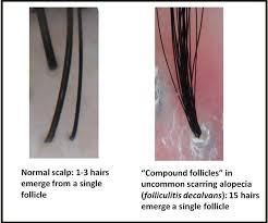 growing out pubic hair hair bangs 2 hairs one pore