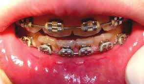 nickel free braces 10 material related adverse reactions in orthodontics pocket