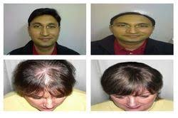 hair bonding hair bonding services in pune
