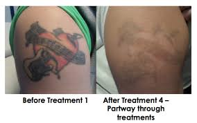 tattoo removal chicago bare tattoo hair removal laser tattoo