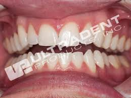 Does Laser Teeth Whitening Work Prefilled Whitening Trays 10 U0026 15 Hydrogen Peroxide