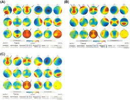 bureau des hypoth ues draguignan brain changes during a shamanic trance altered modes of