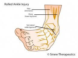 High Ankle Sprain Anatomy Sprained Ankle Information Sinew Therapeutics Anatomy