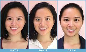 neutrogena light therapy acne mask before and after i tried an led face mask for two weeks and it worked beautymnl