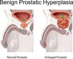 medifit biologicals benign prostatic hypertrophy bph