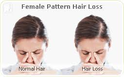 what causes hair loss in women over 50 hair loss symptom information 34 menopause symptoms com