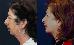 hairstyles that cover face lift scars beverly hills plastic surgeon dr aharonov natural facelift expert