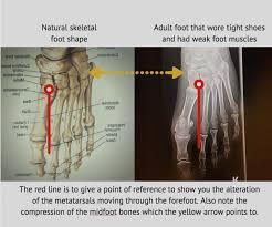 Skeletal Picture Of Foot Stop Foot Pain A Nerd U0027s Guide To Healthy Feet Nerd Fitness