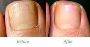professional foot care severe nail fungus laser treatment