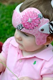 baby bands cranial band doc band https www pages cranial