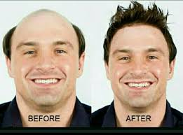 male hair extensions before and after hair extensions hair silicon system hair hair apparent in