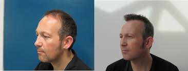 Signs Of Hair Loss Male Hair Loss Hair Transplant And Hair Restoration Advice