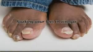 does listerine cure toenail fungus listerine doesn u0027t clean