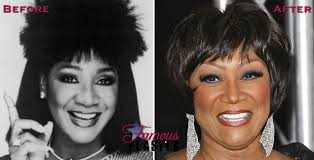 tamar braxton nose job before after patti labelle wants her old nose back regrets nose job plastic surgery