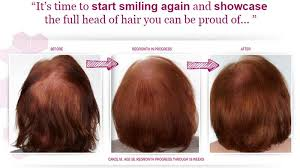 rogaine for women success stories regrow hair quickly