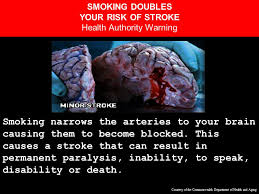 Can Stroke Cause Blindness Smoking Narrows Your Arteries Causing Them To Become Clogged And