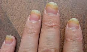 toenail fungus treatment all you kneed to know