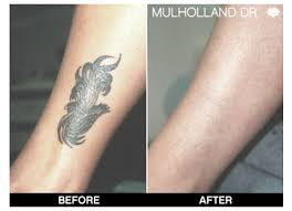 laser tattoo removal in toronto on spamedica toronto