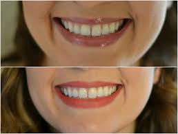 crest supreme whitening strips new year new smile by m