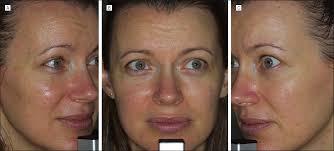 intense pulsed light review skin rejuvenation using intense pulsed light a randomized