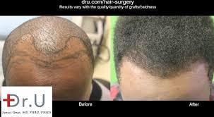 hairline restoration for black men video dr ugraft hair restoration for black african men los angeles