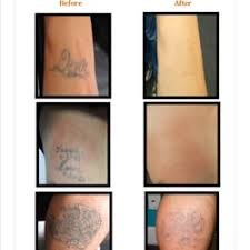 removing barriers tattoo removal 18 photos u0026 34 reviews tattoo