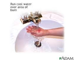 Water For That Burn Meme - adventure discussions blog archive ouch burns adventure discussions