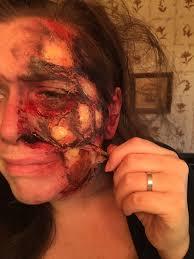 Halloween Makeup Burned Face by Burn Makeup Album On Imgur