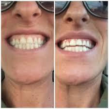 Does Laser Teeth Whitening Work Davinci Teeth Whitening Teeth Whitening 1720 W Mulberry St