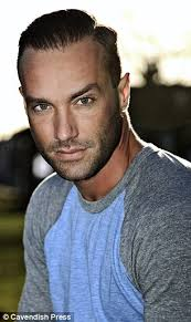 antony cottons hair transplant calum best reveals his third hair transplant daily mail online