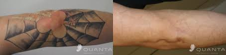 quanta studio affordable laser for tattoo removal