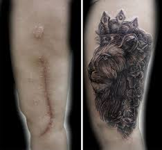 10 amazing scar cover up tattoos part 8