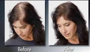bald spor hair styles bald spot quick fix with forila hair fibers youtube bald spot