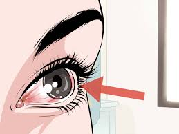how to choose contact lenses 15 steps with pictures wikihow