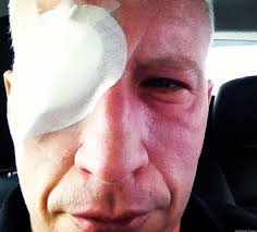 Temporary Partial Blindness Eye Sunburn What Caused Anderson Cooper U0027s Temporary Blindness