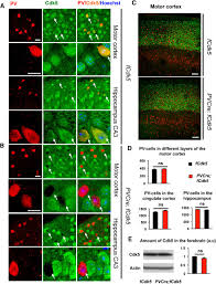 loss of cyclin dependent kinase 5 from parvalbumin interneurons