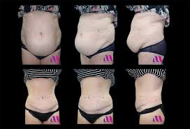 abdominoplasty tummy tuck repair of post pregnancy split in