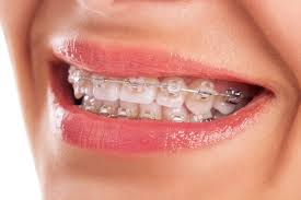 Interesting Ideas How Much To by Interesting Ideas Teeth Braces Cost Gorgeous Top Teeth Whitening