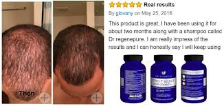 Stem Cells Hair Loss Amazon Com Vie Naturelle Hair Loss Vitamins Supplement For Fast