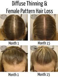 Azelaic Acid Hair Loss The Belgravia Centre
