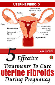 5 best treatments for uterine fibroids during pregnancy