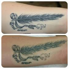 before and after 2 sessions at remove inc laser tattoo removal