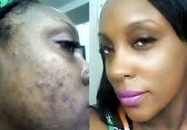 salicylic acid shoo for african american hair keratosis pilaris acne clinic black skin care acne scars