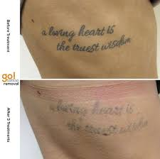 827 best tattoo removal in progress images on pinterest