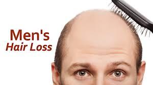 Women Hair Loss Treatment Hair Loss Solution Hair Loss Treatment For Men Hair Loss