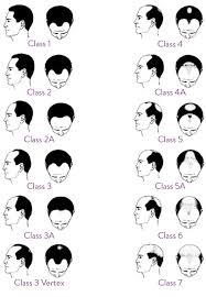 men growing hair out stages male hair loss information androgenetic alopecia explained mphl