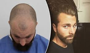 hairstyles for men with horseu hair lines do you think justin bieber is balding pics page 5