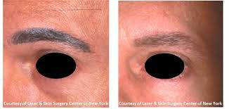 laser tattoo removal nyc laser u0026 skin surgery center of new york