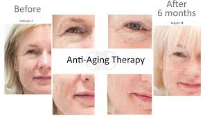 Blu U Before And After Anti Aging Treatment Clinic Anti Aging Therapy