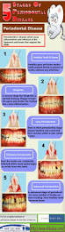 Dentist That Do Teeth Whitening Best 10 Dental Teeth Ideas On Pinterest Dental Life Dentistry